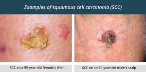 Bits Plus Skin Cancer Clinic Bits Medical Centre Gladstone News